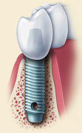 implant figure