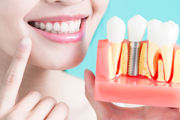 Lady smiling with Dental Implant