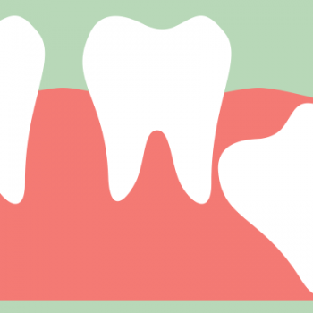 Wisdom tooth growing in sideways