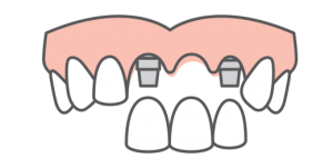 multi-tooth replacement icon